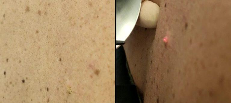הסרת נגעי עור בלייזר