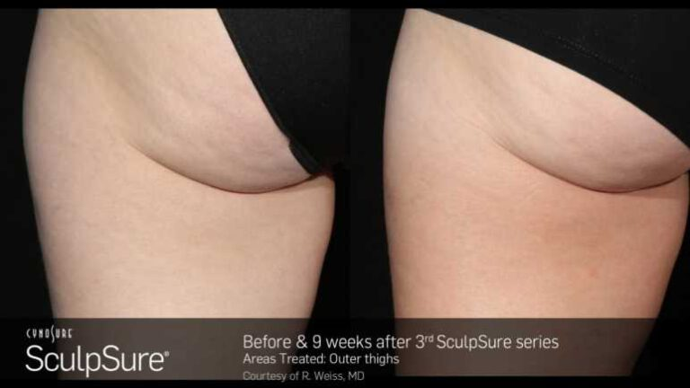 sculpsure-before-and-after-7