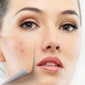 טיפול פנים בלייזר